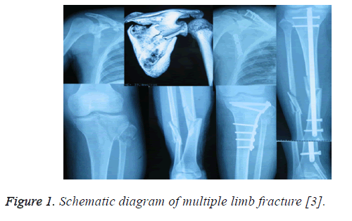 biomedres-multiple-limb-fracture