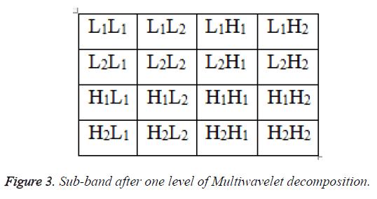 biomedres-multiwavelet-decomposition