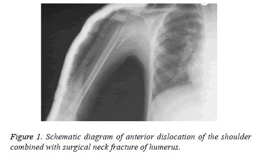 biomedres-neck-fracture