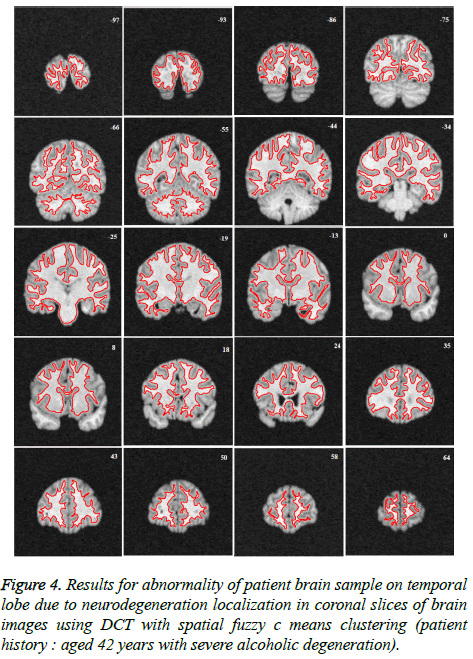 biomedres-neurodegeneration-localization