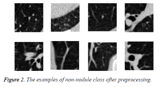 biomedres-non-nodule-class