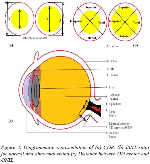 biomedres-normal-abnormal-retina