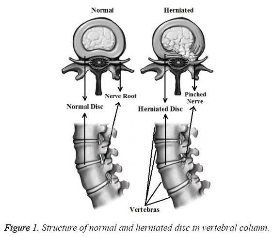 biomedres-normal-herniated-disc