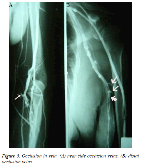 biomedres-occlusion-veins