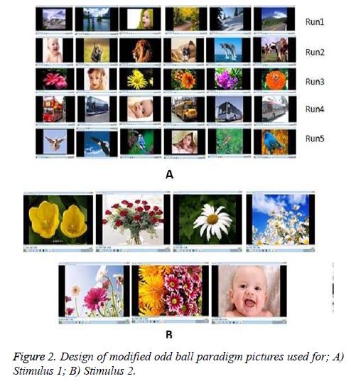 biomedres-odd-ball-paradigm