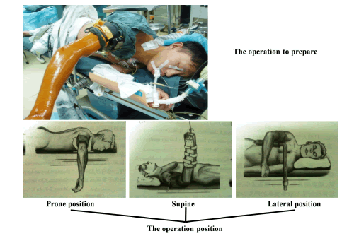biomedres-operation-prepare