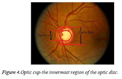 biomedres-optic-disc