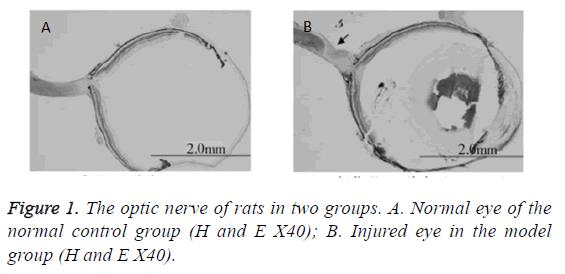 biomedres-optic-nerve