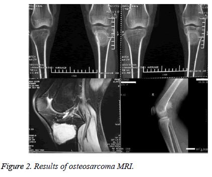 biomedres-osteosarcoma