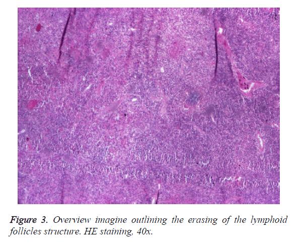 biomedres-outlining-erasing-lymphoid