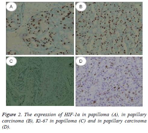 biomedres-papillary-carcinoma