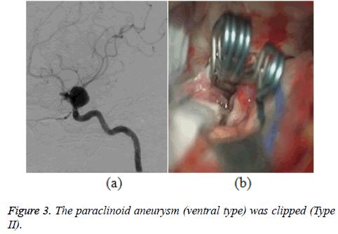 biomedres-paraclinoid-aneurysm