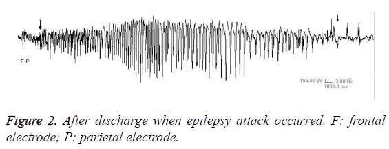 biomedres-parietal-electrode