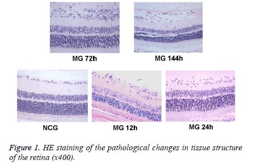 biomedres-pathological-tissue