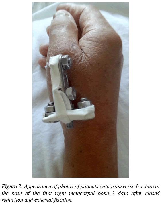 biomedres-patients-transverse-fracture