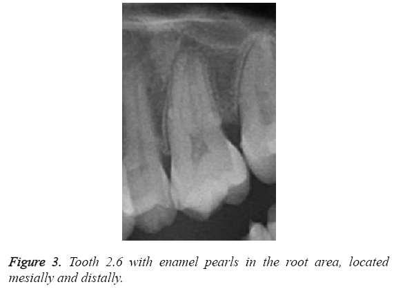 biomedres-pearls-root-area