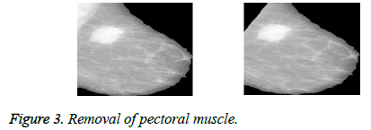 biomedres-pectoral-muscle