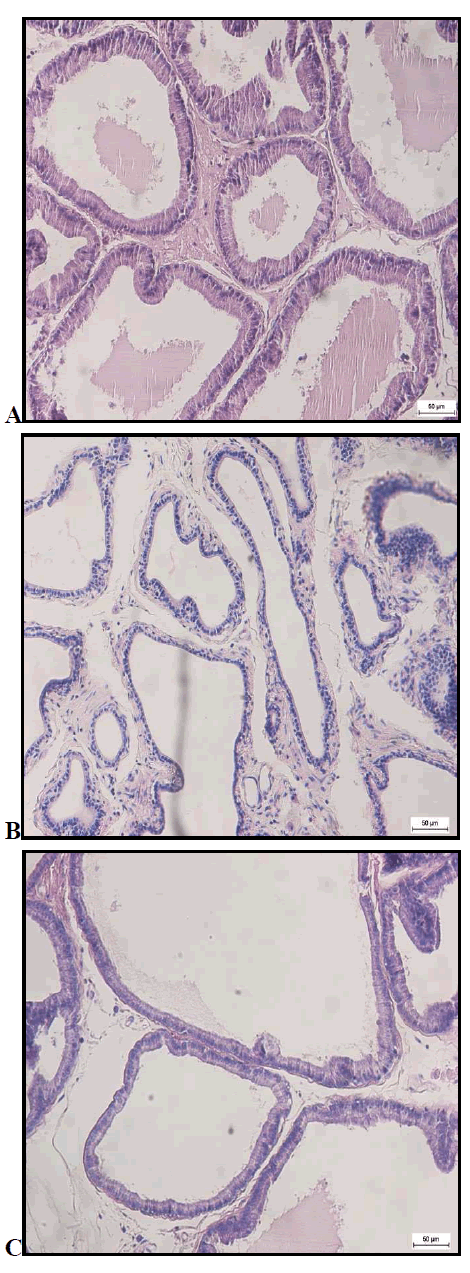biomedres-photomicrographs-prostate-gland