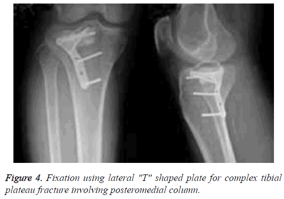 biomedres-plateau-fracture-posteromedial