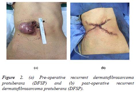 biomedres-post-operative