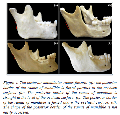 biomedres-posterior-mandibular