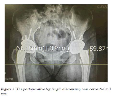 biomedres-postoperative-leg