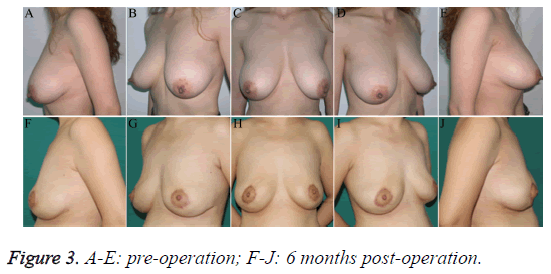 biomedres-pre-post-operation