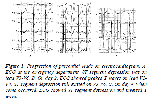 biomedres-precordial-leads