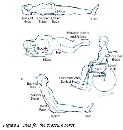 biomedres-pressure-sores