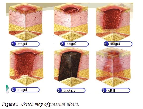 biomedres-pressure-ulcers
