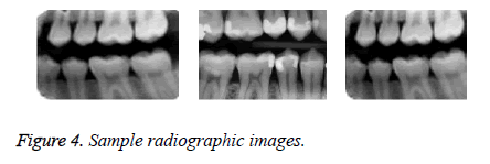 biomedres-radiographic-images