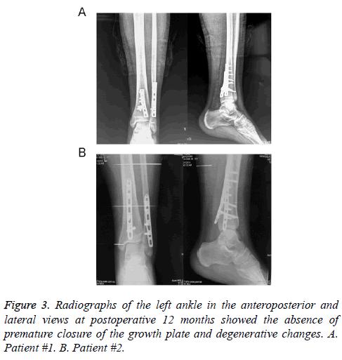 biomedres-radiographs-anteroposterior