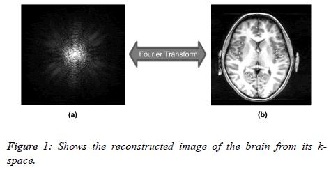 biomedres-reconstructe-image