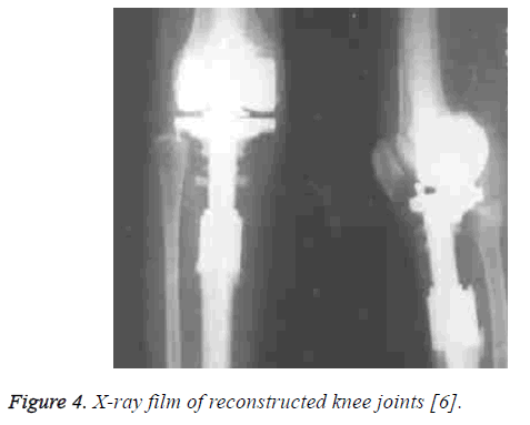 biomedres-reconstructed-knee-joints