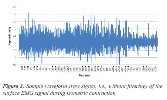 biomedres-record-Sample-waveform