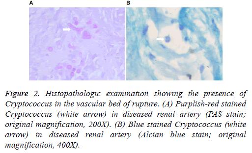 biomedres-renal-artery