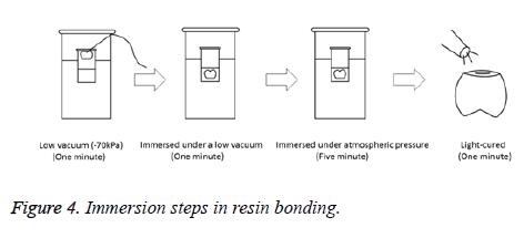 biomedres-resin-bonding