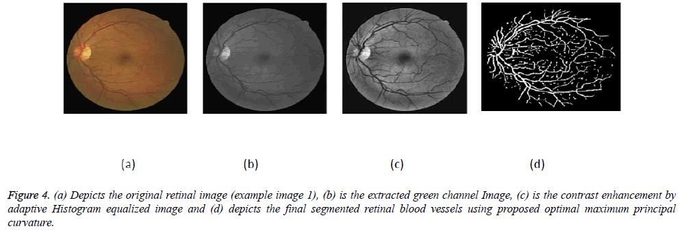 biomedres-retinal-image