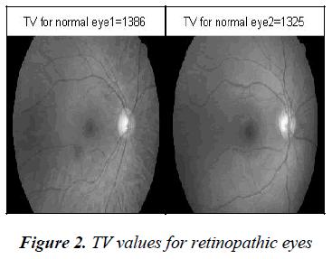 biomedres-retinopathic-eyes