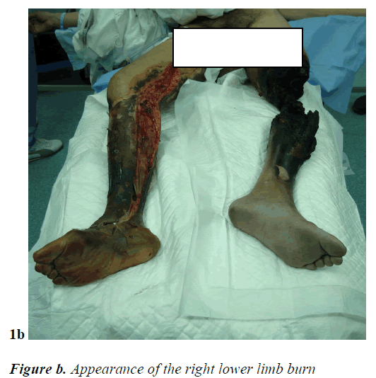 biomedres-right-lower-limb