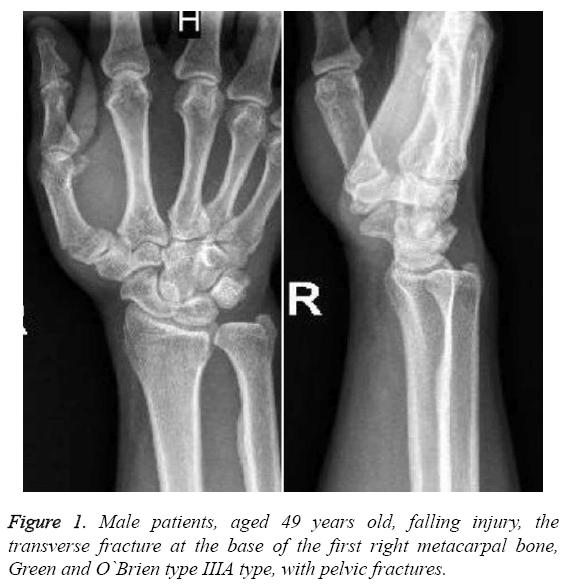 biomedres-right-metacarpal-bone