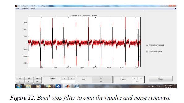 biomedres-ripples-noise