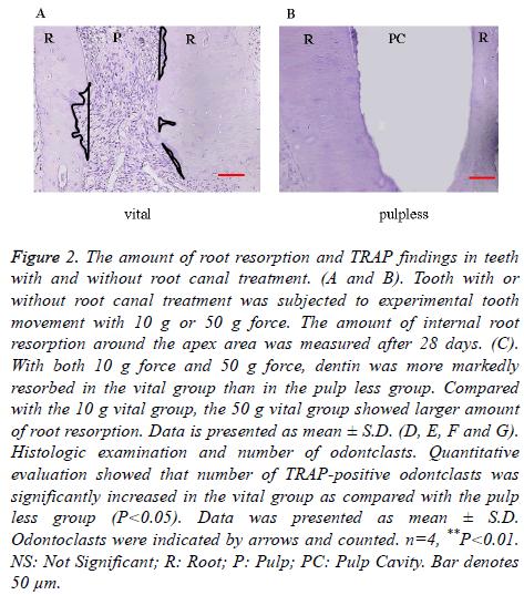 biomedres-root-resorption