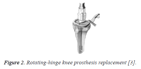 biomedres-rotating-hinge-knee