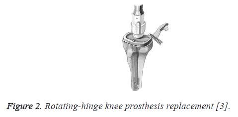 biomedres-rotating-hinge-knee