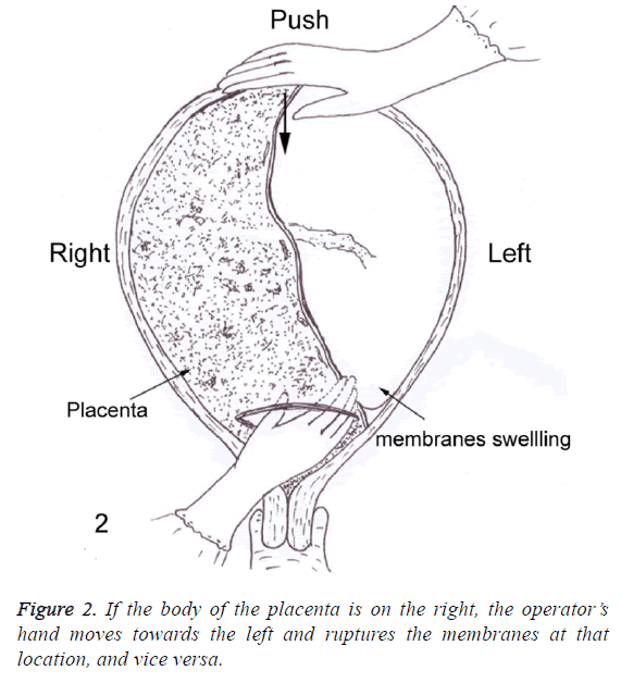biomedres-ruptures-membranes
