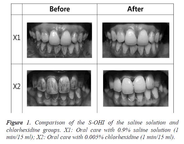 biomedres-saline-solution