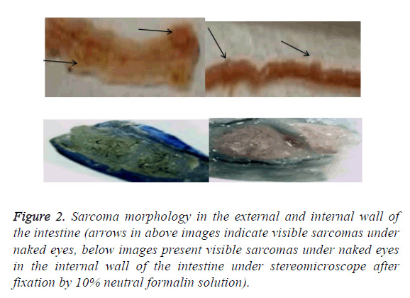 biomedres-sarcoma-morphology