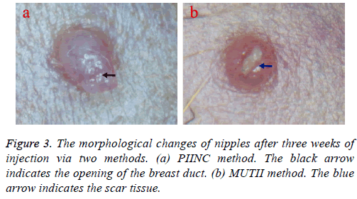 biomedres-scar-tissue