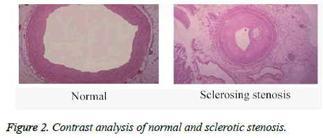 biomedres-sclerotic-stenosis